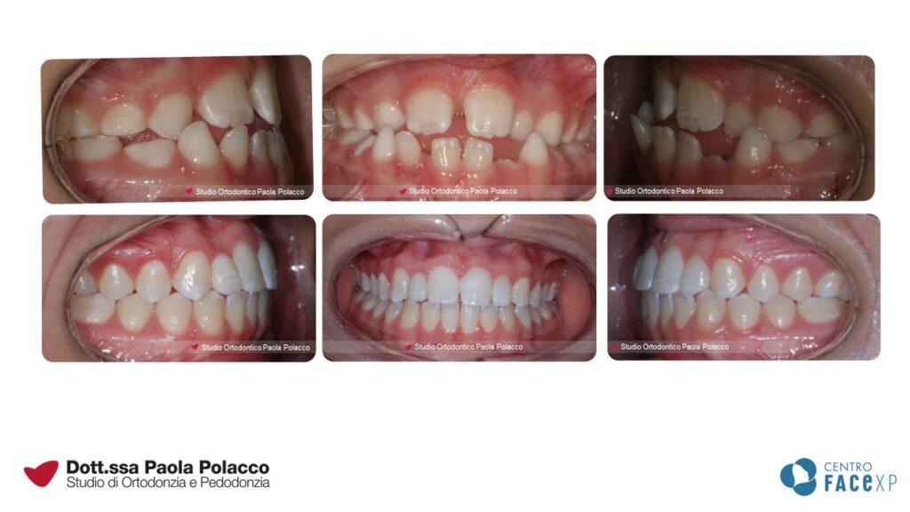 Agenesia  - Studio Ortodontico Paola Polacco - Centro FACExp