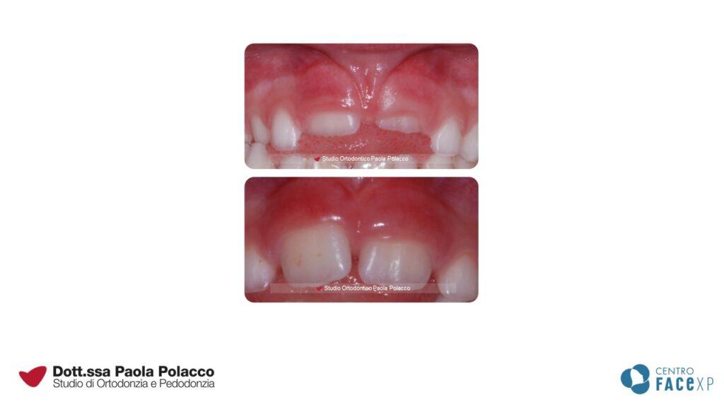 Anomalie frenuli kids - Studio Ortodontico Paola Polacco - Centro FACExp
