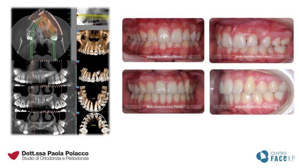 Canino incluso - Studio Ortodontico Paola Polacco - Centro FACExp