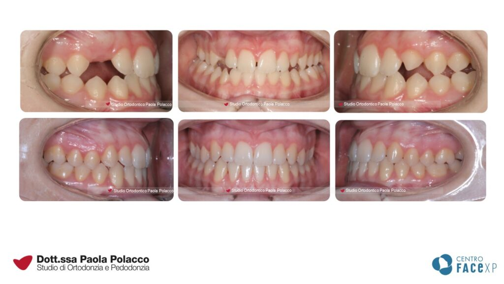 III classe TEEN - Studio Ortodontico Paola Polacco - Centro FACExp