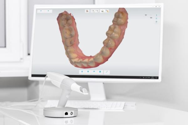scanner intraorale sedazione cosciente Studio Ortodontico Paola Polacco Centro FACExp